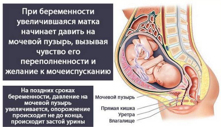 Цистит во время беременности