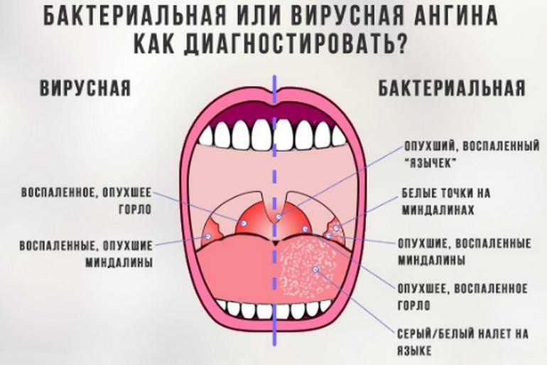 Гнойная ангина чем лечить у детей, лечение ангины