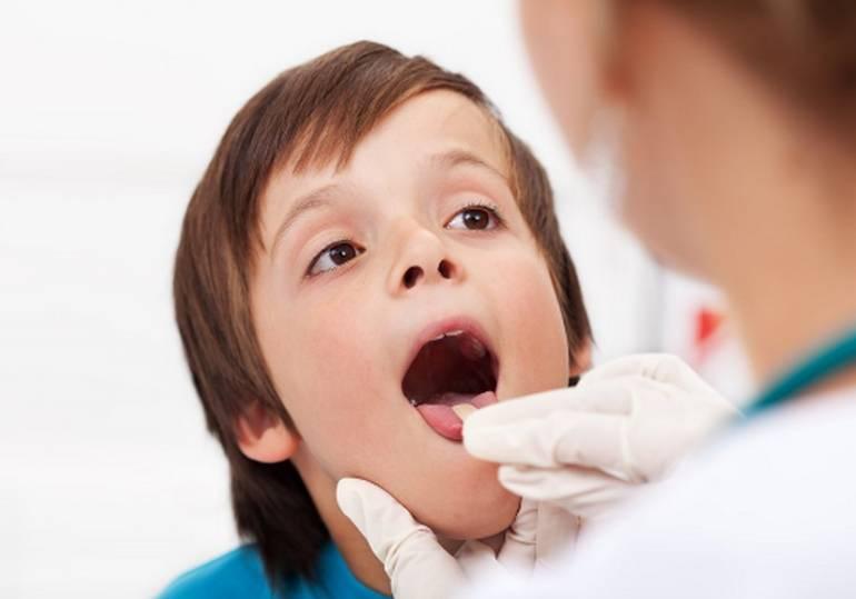 Стоматит у ребенка лечение